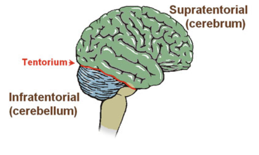 supratentorial and infratentorial superficial siderosis areas of the brain